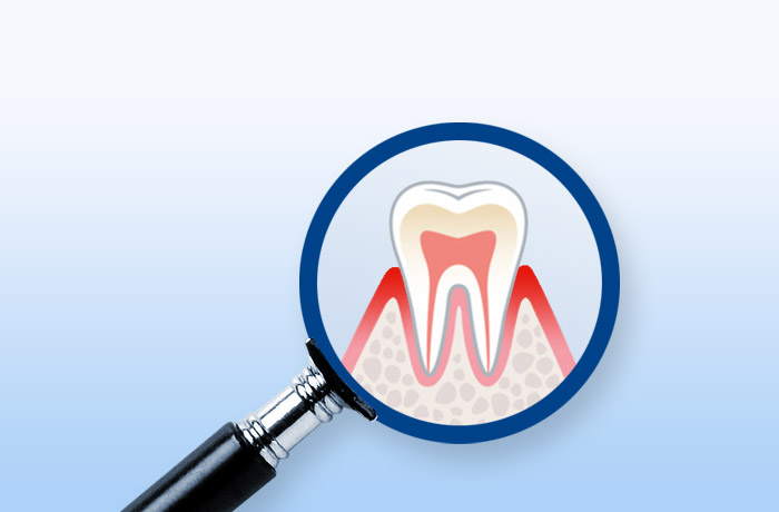 Aminomed - Parodontitis-Risiko-Test