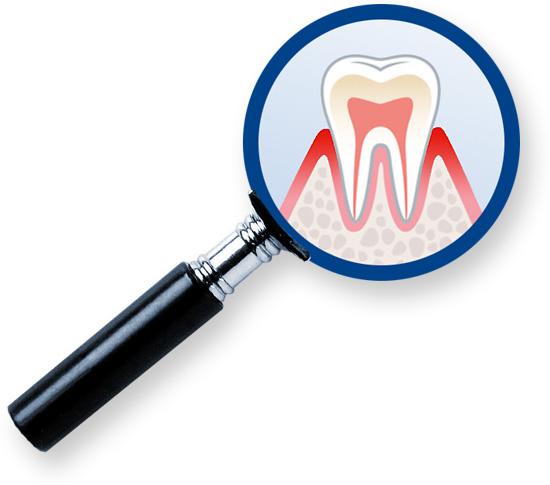 Aminomed - Testen Sie Ihr Parodontitis-Risiko